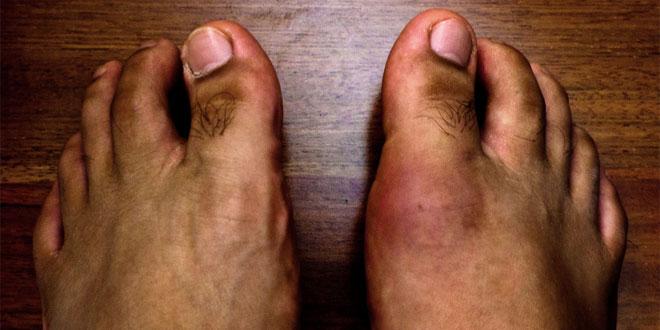 social_gout-vs-pseudogout